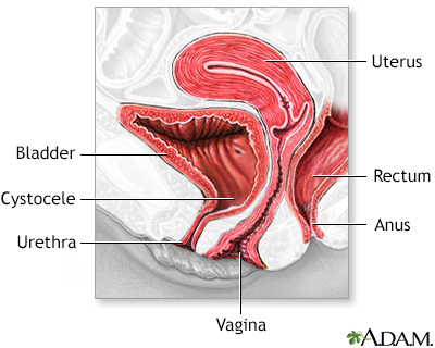 Urine leakage with cystocele with sex