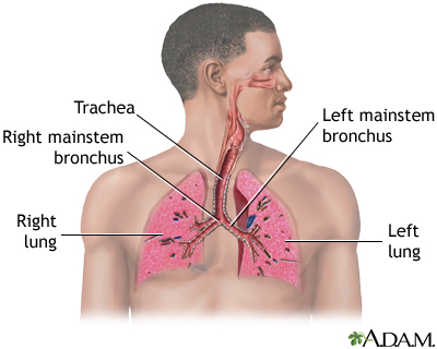 Pneumonia - adults (community acquired)