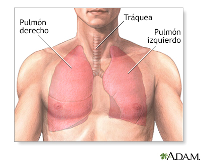 Cirugía del pulmón